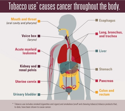 tobacco-use-causes-cancer.jpg